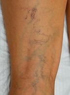 spider vein treatment arizona