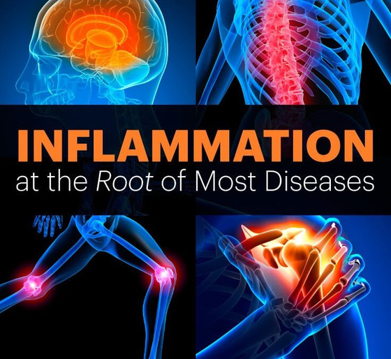 What You Don't Know About Inflammation