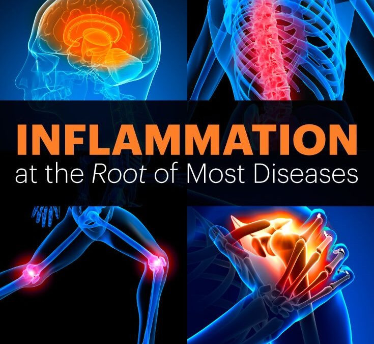 Inflammation at the Root of Most Diseases