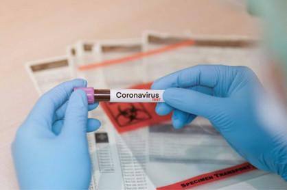 Coronavírus avança 384% na RMC após atraso na divulgação dos dados no Estado de São Paulo