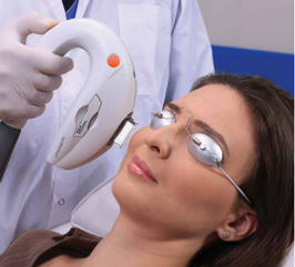 Lumenis-IPL-tampa-treatment-dry-eye.png