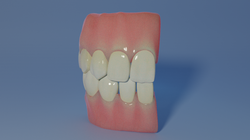 Teeth and Gum Model