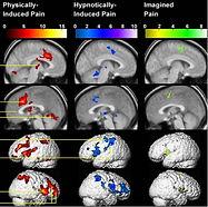 Activations de la douleur rapportées par Derbyshire (2004)