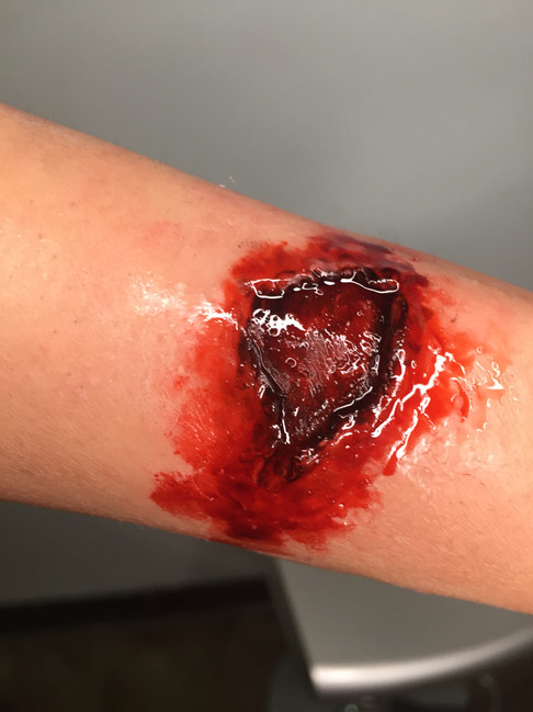 Bullet Exit Wound
