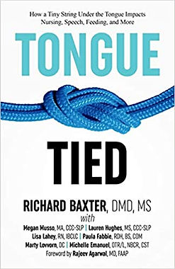 Tongue tied book by Richard Baxter DMD, MS