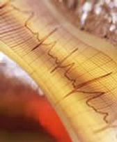electrocardiogram.jpg