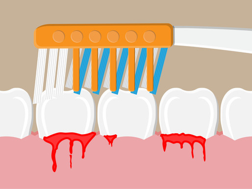 Why Do My Gums Bleed When I Brush Or Floss My Teeth ?!