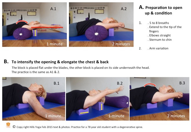 yoga practice for arthritis P1 - Hills Yoga