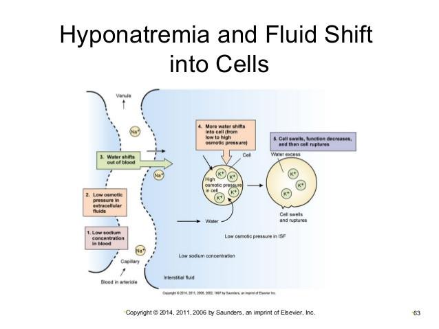 Hyponatremia diagram