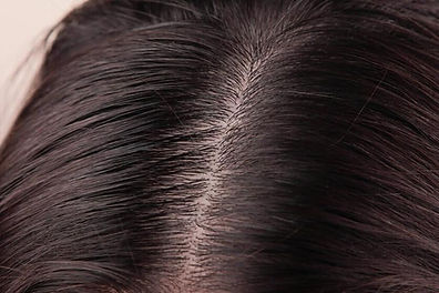 dry-and-oily-scalp_1024x1024.jpeg