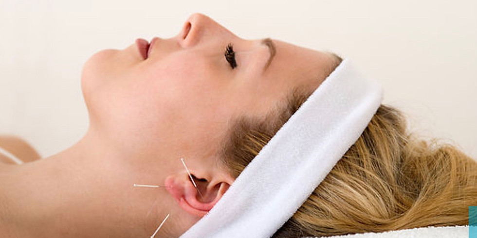 Auricular Acupunture - SOLD OUT
