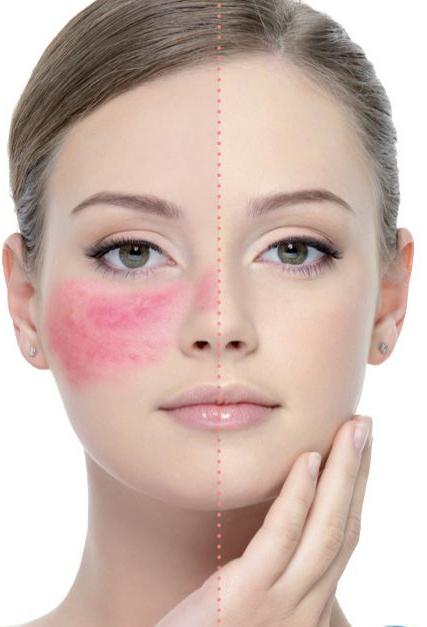 Rosacea Laser Treatment