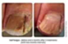 Onychomycosis Dra Virginia Benitez Roig | Porto Banus Marbella| Madrid surgical and non-surgical aesthetic and cosmetic enhancements