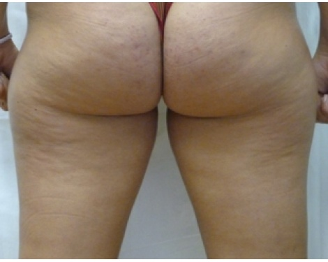 Sockwave Therapies pain, Cellulite