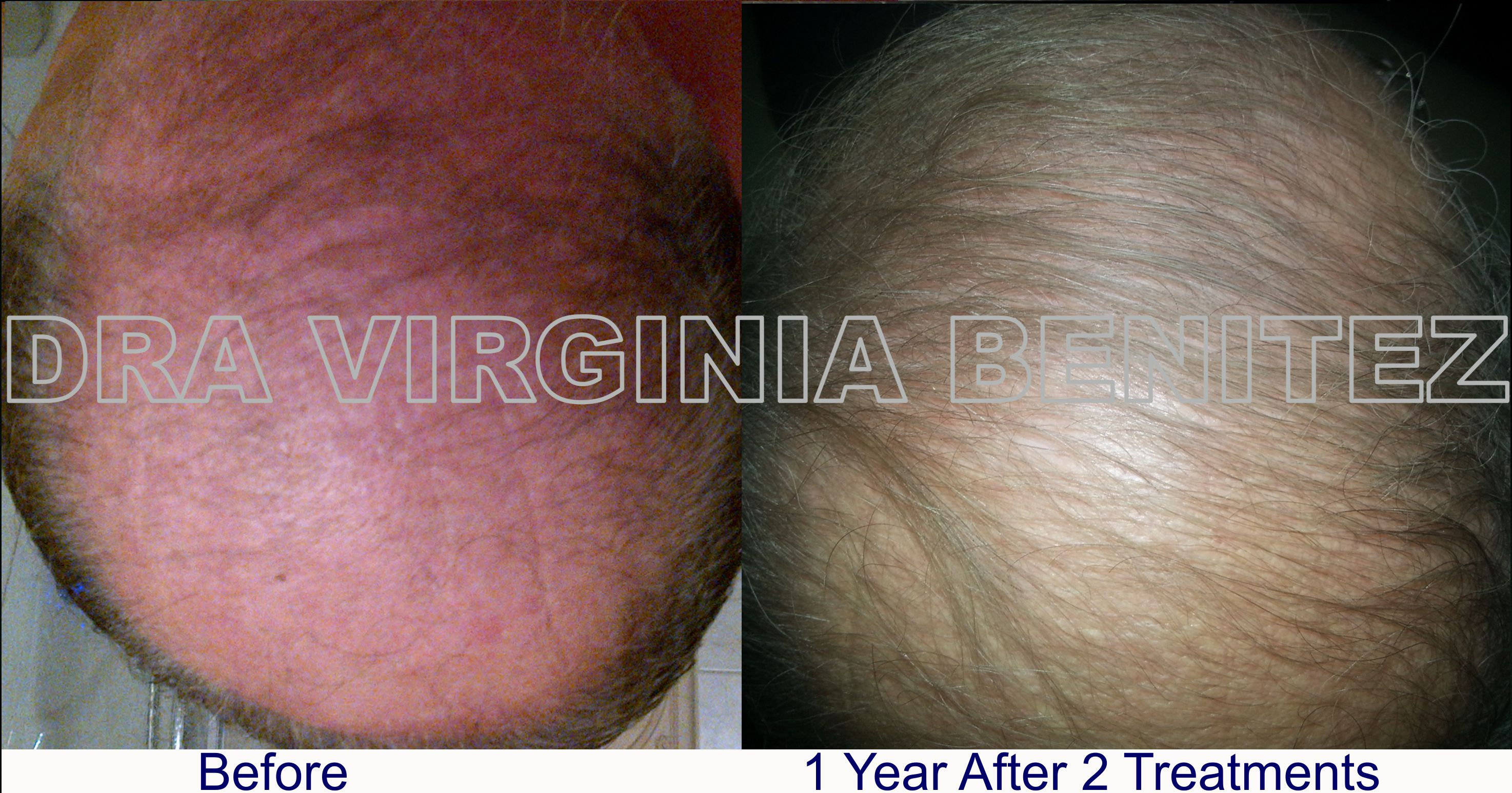 Hair treatment with PRP