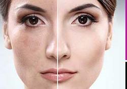 Skin Clarity Picoway Marbella Spain