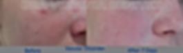 Vascular Lesion Dra Virginia Benitez Roig | Porto Banus Marbella| Madrid surgical and non-surgical aesthetic and cosmetic enhancements