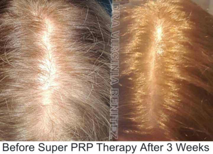 HairTherapy with PRP