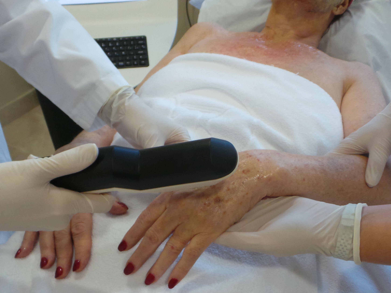 Spot Treatments Ellipse