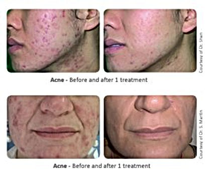 Acne laser treatment We practice surgical and non-surgical enhancements including aesthetic treatments, cosmetic treatments and plastic cosmetic surgery. We work mainly in glamorous Puerto Banus Marbella, in one of the most advanced clinics of its kind