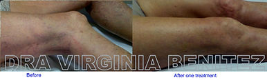 Spider and varicose Veins Treatment with IPL Laser
