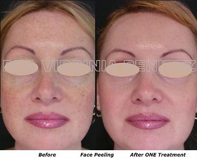 Peeling Facial Peeling Químico, Dra Virginia Benitez Roig Puerto Banus Marbella Clínica Estética