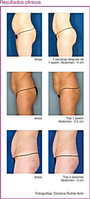 VelaShape III Dra Virginia Benitez Roig Puerto Banus Marbella | Madrid My team and I are practicing surgical and non-surgical aesthetic and cosmetic enhancements