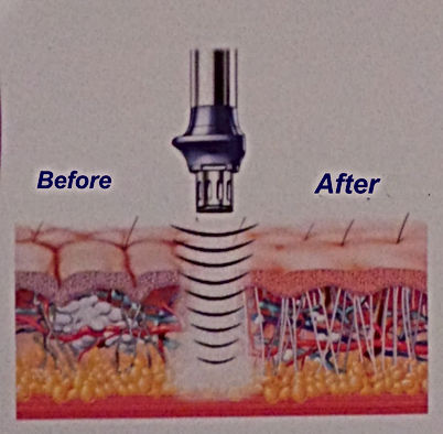 Choque Shockwave Dra Virginia Benitez Roig practicing surgical & non-surgical aesthetic & cosmetic enhancement