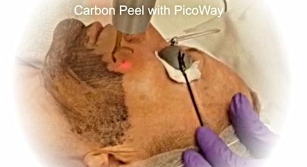 Carbon Laser Peel con PicoWay Marbella Spain
