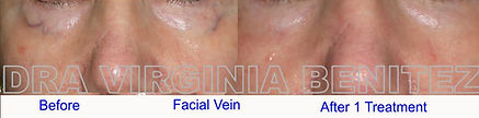 Vascular Lesion Dra Virginia Benitez Roig | Porto Banus Marbella| Madrid surgical and non-surgical aesthetic and cosmetic enhancements
