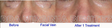Vascular Lesion We practice surgical and non-surgical enhancements including aesthetic treatments, cosmetic treatments and plastic cosmetic surgery. We work mainly in glamorous Puerto Banus Marbella, in one of the most advanced clinics of its kind