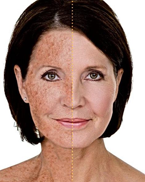 Sun damaged Skin Marbella Dra Virginia Benitez Roig