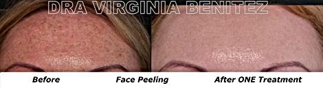 Face Peelings Results Marbella Spain