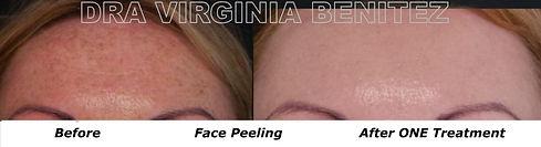 Peeling Facial Peeling Químico Dra Virginia Benitez Roig | Puerto Banus Marbella Clínica Estética