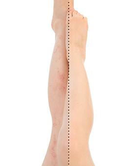 Laser for Leg Veins Traetment Dra Virginia Benitez Roig Marbella Spain