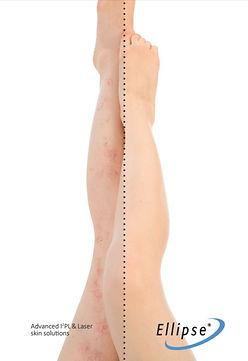 Leg Veins Dra Virginia Benitez Roig | Porto Banus Marbella| Madrid surgical and non-surgical aesthetic and cosmetic enhancements