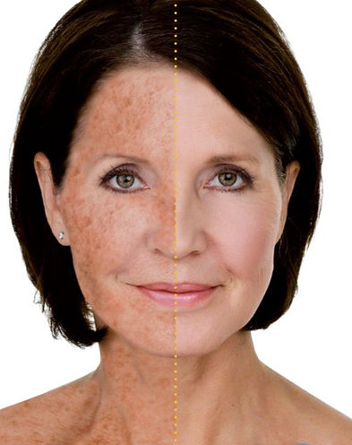 Sun-damaged Skin Dra Virginia Benitez Roig | Porto Banus Marbella| Madrid surgical and non-surgical aesthetic and cosmetic enhancements