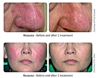 Rosacea Dra Virginia Benitez Roig | Porto Banus Marbella| Madrid surgical and non-surgical aesthetic and cosmetic enhancements
