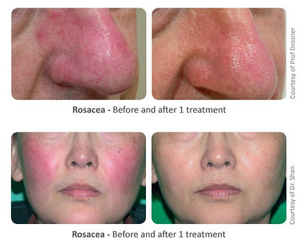 Rosacea We practice surgical and non-surgical enhancements including aesthetic treatments, cosmetic treatments and plastic cosmetic surgery. We work mainly in glamorous Puerto Banus Marbella, in one of the most advanced clinics of its kind