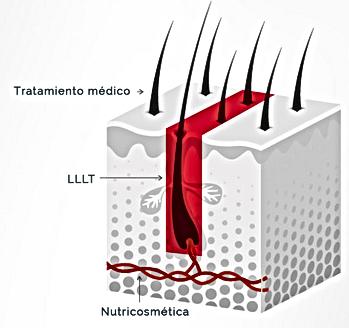 Hair stimulation growth laser Cup Dra Virginia Benitez Marbella Spain