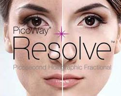 Resolve Fraxional Picoway Marbella