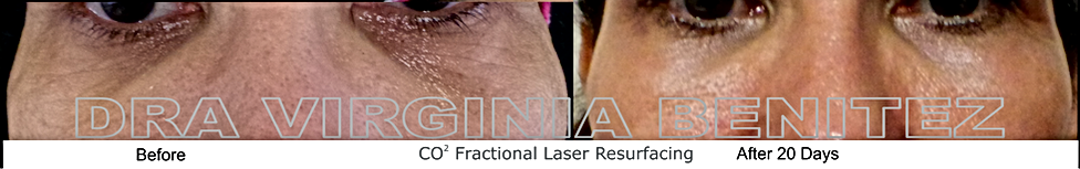 CO2 Resurfecing We practice surgical and non-surgical enhancements including aesthetic treatments, cosmetic treatments and plastic cosmetic surgery. We work mainly in glamorous Puerto Banus Marbella, in one of the most advanced clinics of its kind