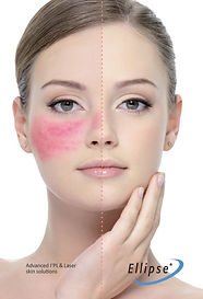 Rosacea Treatment Dra Virginia Benitez Roig Marbella Spain