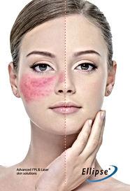 Rosacea Treatment Dra Virginia Benitez Roig Marbella Spain