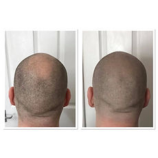 Scalp Micropigmenation