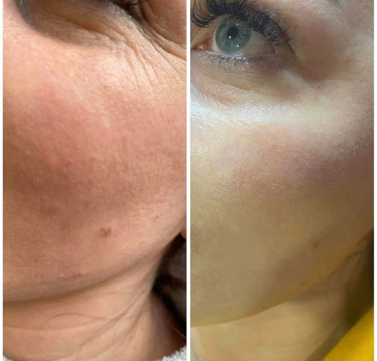 Glow Mesotherapy -  Course of 5