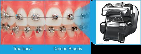 damon braces2.png