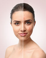 Woman face before and after acne treatme