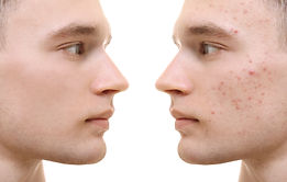Young man before and after acne treatmen