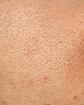 Human skin pore texture with dirty black